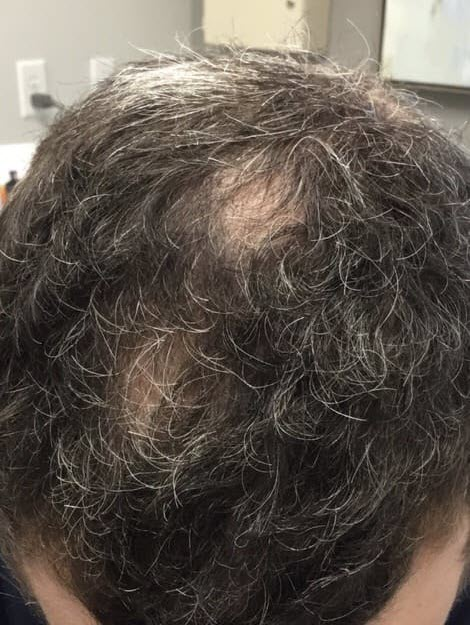 PRP Hair Restoration & Hair Loss Treatment Cypress | Blades Wellness